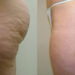 Tratamentos Naturais Para Combater Celulite