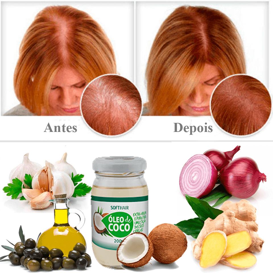 1-tratamento-contra-queda-de-cabelo